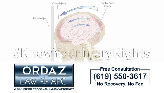 mild traumatic brain injury, Ordaz Law, APC