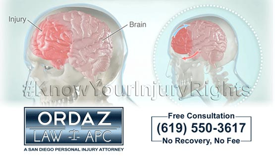 concussion, Ordaz Law, APC